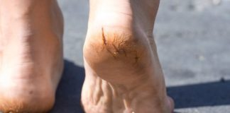 how to Treat cracked feet and heels