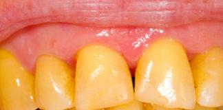 Yellow teeth whitening treatment