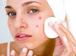 Home Remedies for Pimples Removal