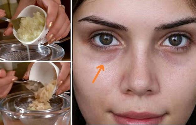 Remove lip darkness in 2 minutes